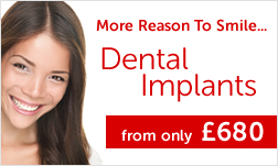 Dental Implants from only £680