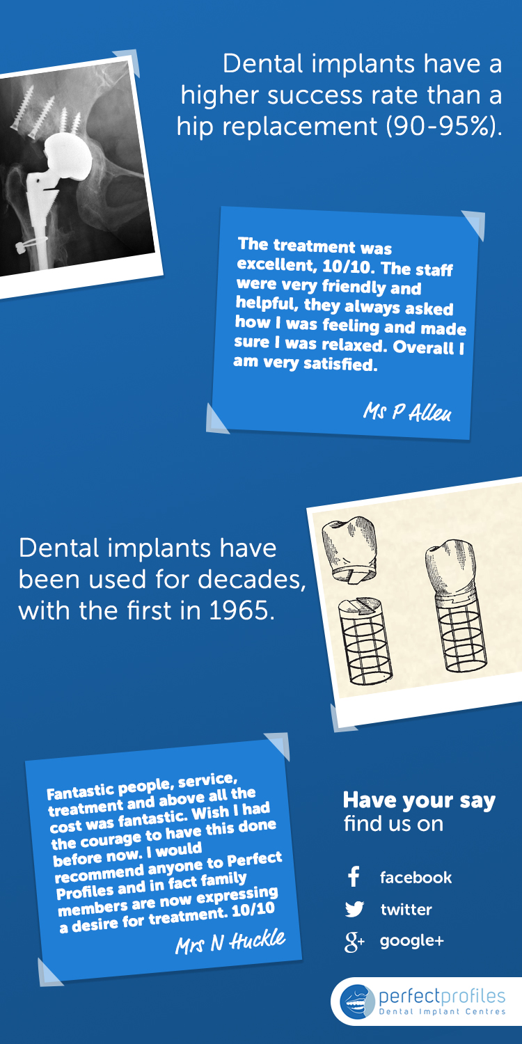 Perfect Profiles - Dental Implants Infographic