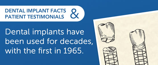 Did You Know Dental Implants Have Been Used For Decades