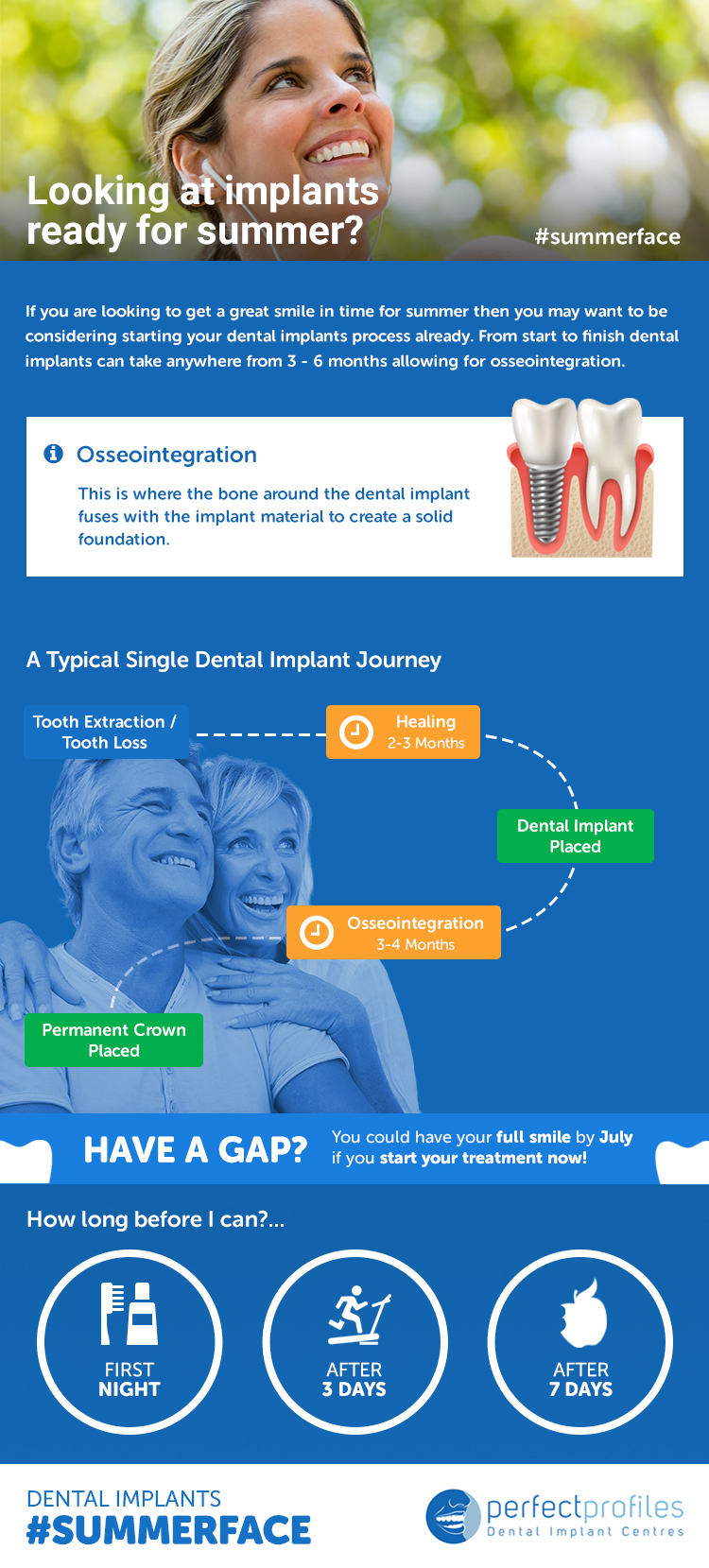 Looking at implants ready for summer? You may want to be considering starting your dental implants process already
