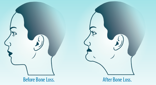 Bone Loss | Perfect Profiles